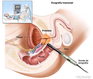 prostata-hiperplasia-benigna-3